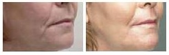 Body And Face Thread Lift