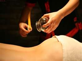 Fire_Cupping