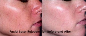 Laser Rejuvenation Facial